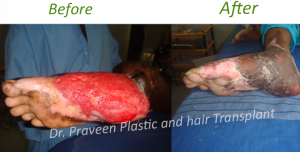 BW Wound grafting