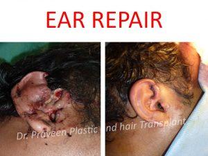 EAR RECONSTRUCTION 2