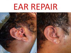 EAR RECONSTRUCTION 3