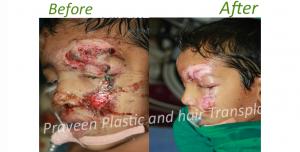 K child injury