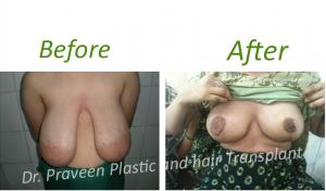a1 breast reduvtion
