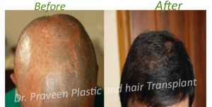 a1 hairtransplant