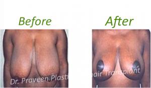 b2 breast reduction