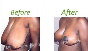 c3 breast reduction
